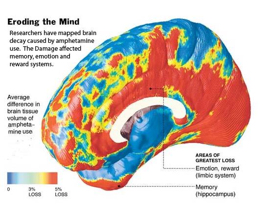 adhd drugs amphetamines and brain damage